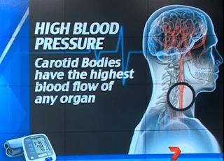 علاج جراحي يقضي علي مرض ارتفاع ضغط الدم نهائياً ! 2
