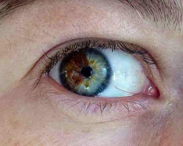 تغيير لون العينين إلى الأزرق في 20 ثانية و بدون عدسات لاصقة ! 1