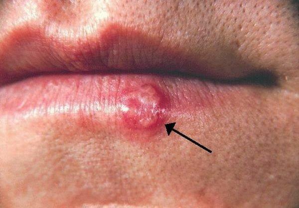 فيروس الهربس البسيط : قرحة صغيرة قد تعني الخطر على حياة طفلك ! 1
