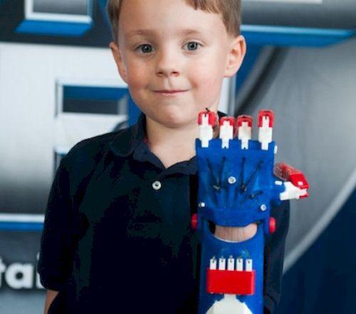 أطراف صناعية مجانية للأطفال بإستخدام تقنية الطباعة ثلاثية الأبعاد 13